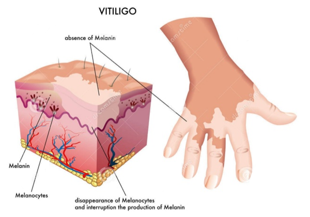 Vitiligo Treatment in Delhi