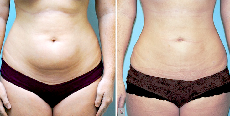 Benefits every does 5 lb weight loss show casting nervous
