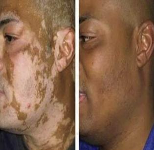 Vitiligo Treatment In New Delhi Vitiligo Surgery In Delhi